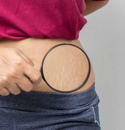 Smagliature, un inestetismo della pelle molto diffuso. Cause e rimedi naturali per affrontare il problema
