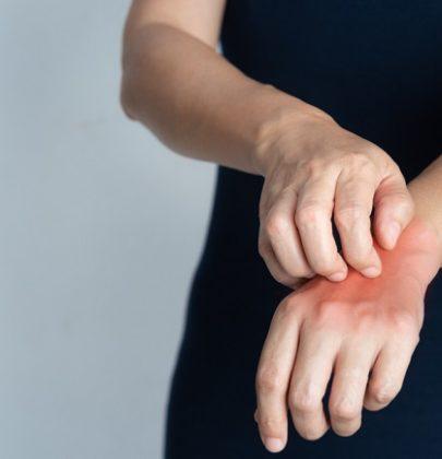 Come non irritare le mani a forza di lavarle. A casa scegliete saponi poco aggressivi